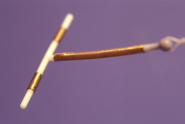 The ParaGuard IUD, which releases copper into the uterine cavity, can last up to 10 years. In clinical studies, the pregnancy rate among women using the device was less than 1 pregnancy per 100 women annually.