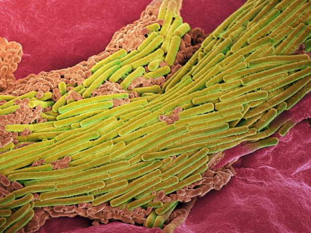 <em>C. difficile</em> bacteria, shown in yellow, are common in hospitals and nursing homes, and very difficult to treat.