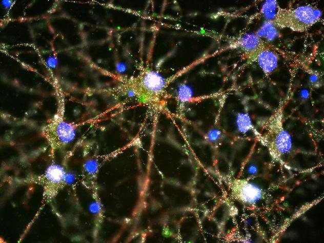 C4 proteins (green) are seen at the synapses in a culture of human neurons. (Heather de Rivera/McCarroll Lab/Harvard via AP)