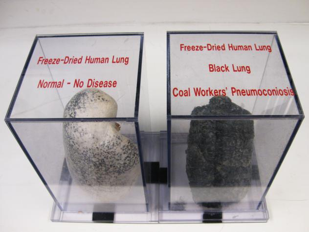 Sliced sections of lungs show the damage and disease caused by excessive exposure to coal and silica dust. The middle slide depicts a lung with fibrotic tissue resulting from simple coal workers' pneumoconiosis or black lung. The slide on the right shows