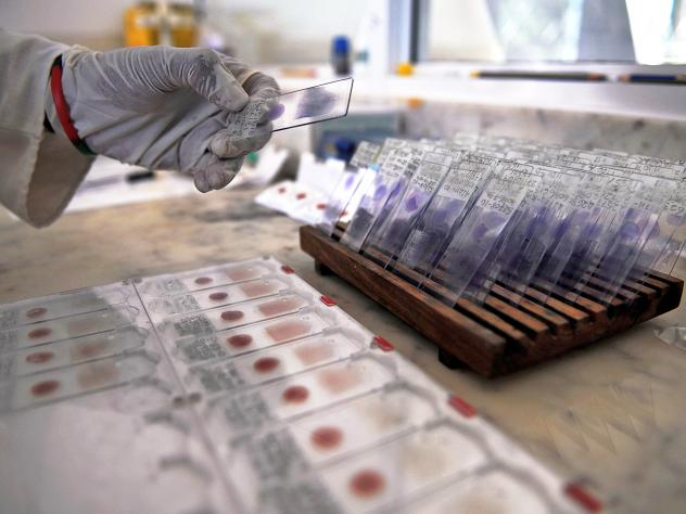A laboratory technician prepares blood samples from volunteers for viral-genotyping at the government-run Ifakara Health Institute in Bagamoyo, 70 kms north of the Tanzanian capital Dar es Salaam.