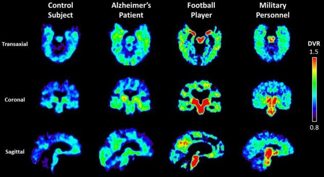 UCLA researchers are using a radioactive tracer, which binds to abnormal proteins in the brain, to see if it is possible to diagnose chronic traumatic encephalopathy in living patients. Warmer colors in these PET scans indicate higher concentrations of t