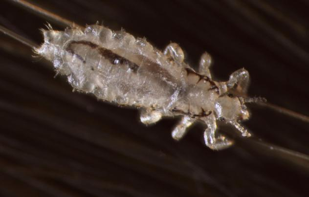 A female adult head louse clings to a hair plucked from a human scalp. The brown line visible inside the insect, on the left side of its body, is its last blood meal. Lice typically eat a few times a day.