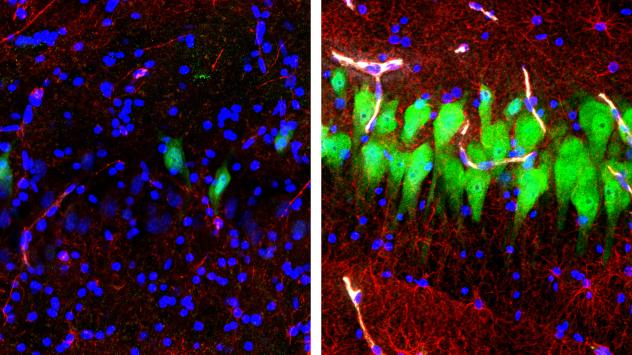 The image on the left shows the brains of pigs that were untreated for 10 hours after death, with neurons appearing as green, astrocytes as red and cell nuclei as blue. The image on the right shows cells in the same area of brains that, four hours after