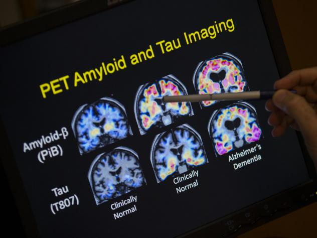 In a May 19, 2015 file photo, R. Scott Turner, Professor of Neurology and Director of the Memory Disorder Center at Georgetown University Hospital, points to PET scan results that are part of a study on Alzheimer's disease at Georgetown University Hospit