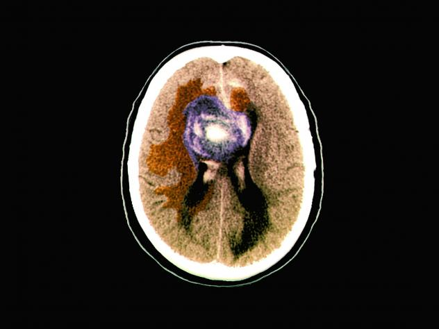 A colored computerized tomography (CT) scan of an axial section of the brain of a 59-year-old patient with a malignant (cancerous) glioblastoma brain tumor.
