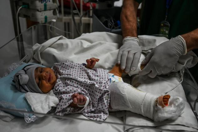 A newborn baby girl receives treatment for the gun wound in her right leg received during the attack on a maternity clinic in Kabul this week. The gunmen killed her mother.