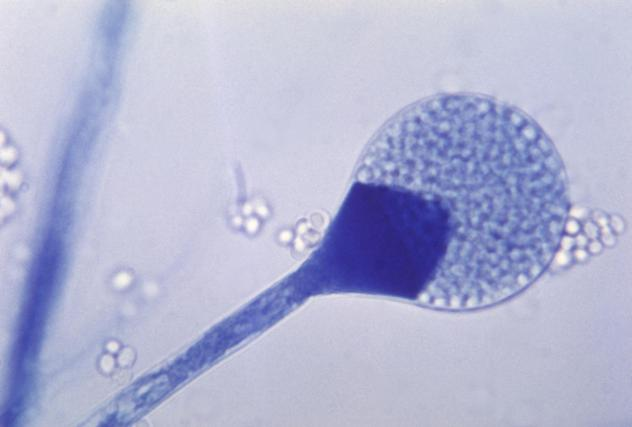 A light micrograph of a mature sporangium of a mucor fungus. India is seeing a rise in cases of mucormycosis, a rare but dangerous fungal infection.
