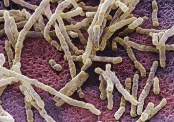 An overgrowth of <em>Clostridium difficile</em> bacteria can inflame the colon with a life-threatening infection.