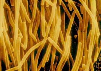 <em>Bacillus subtilis</em> may look like pasta under the microscope, but the bacteria are common in the gut of humans. Could the microbes be contributing to our belly fat? Too soon to tell, scientists say.