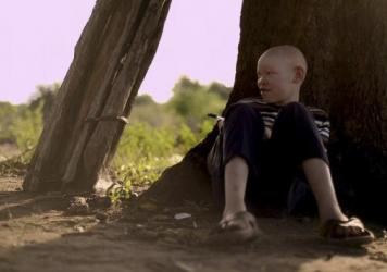 In countries around the African Great Lakes region, including Tanzania, some witch doctors believe that the body parts of people with albinism have magic power.