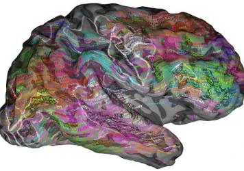 MRI scans suggests words stimulate different regions of the brain depending on their meaning.