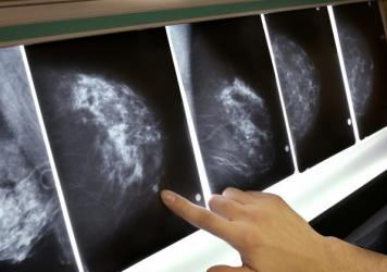 "Breasts deemed ""dense"" in a mammogram tend to have less fatty tissue and more connective tissue, breast ducts and glands, doctors say. About 40 percent of women between the ages of 40 and 74 have dense breasts."
