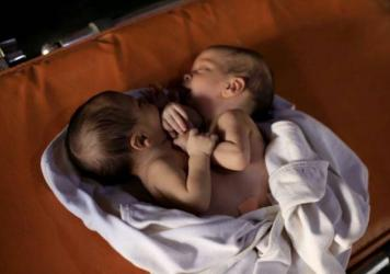 This photo shows conjoined twins born in Syria on July 23, waiting for lifesaving surgery. Arrangements weren't made in time and the twins died on Wednesday.