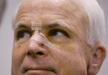 Former presidential candidate John McCain in 2002, with a bandaged nose after being treated for skin cancer. As a candidate, McCain was open about his health and allowed reporters to review more than 1,000 pages of his records over three hours.