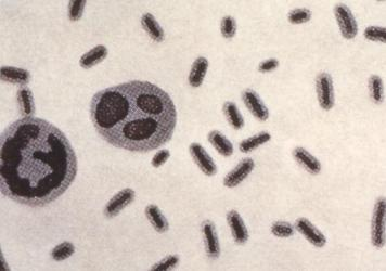 This illustration depicts <em>Klebsiella pneumoniae</em> bacteria, which can cause different types of infections, including pneumonia, bloodstream infections and meningitis.