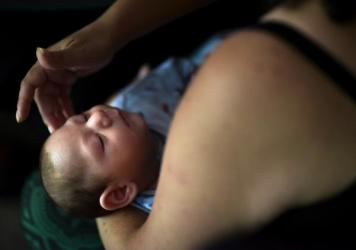 Puerto Rico resident Michelle Flandez caresses her two-month-old son Inti Perez, diagnosed with microcephaly linked to the mosquito-borne Zika virus. The U.S. Centers for Disease Control and Prevention says the Zika virus continues to impact a small number of pregnant women and their babies in the U.S.
