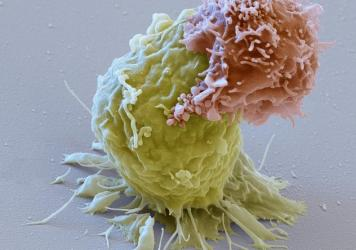 Image of a CAR-T cell (reddish) attacking a leukemia cell (green). These CAR-T lymphocytes are used for immunotherapy against cancer (CAR stands for chimeric antigen receptor). After the proliferation of the CAR-expressing T cells, they are transfused ba