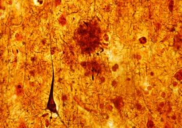 This light micrograph from the brain of someone who died with Alzheimer's disease shows the plaques and neurofibrillary tangles that are typical of the disease. A glitch that prevents healthy cell structures from transitioning from one phase to the next