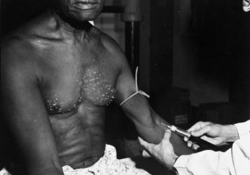 A man receives an injection during the Tuskegee Syphilis Study in the 1930s. The U.S. Public Health Service recruited hundreds of rural Black men in 1932 in Tuskegee, Ala. They would offered free meals and checkups, but never explained that participants