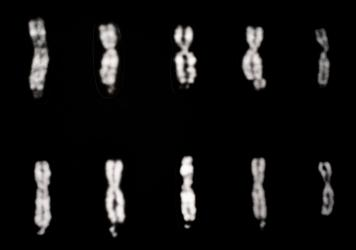Fragile X syndrome involves changes in the X chromosome, as pictured in the four columns of chromosomes starting on the left. The fifth column, on the far right, shows two normal X chromosomes.